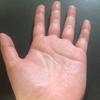 手汗がひどい!どうすれば止められる?