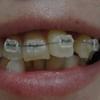 歯列矯正開始から1週間が経ちました。