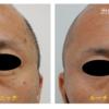 顔の角化症(イボ)取りをしました。 緊急お知らせ ピコレーザー(エンライトン)が進化しました