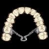 【36歳からの歯列矯正】④上顎拡大装置をつける。
