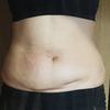 お腹の脂肪吸引【術前に撮った写真】