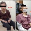 進行性核上性麻痺(PSP)について。
