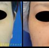 高密度ヒアルロン酸(クレビエル)を注入して鼻を高くしました。