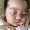 乳児湿疹といちご状血管腫