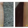 エンライトンⅢがリリースされました!NEWピコレーザーです!圧倒的症例数!ピコレーザー(エンライトン)でタトゥーを除去しています。5回治療後です。