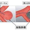 脳動脈瘤に対する血管内治療