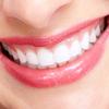 歯の着色の原因は?