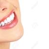歯医者に聞いた、本当に白くなるホワイトニング!![アンチエイジング8日目]