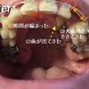歯科矯正ですきっ歯阻止。そして埋まってた歯がしっかり出てきた。