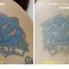 腕のカラフルタトゥーもどんどん薄くなります。