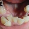 歯列矯正・下の歯も矯正開始です。