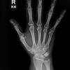 NEJM Knowledge+:35歳女性 利き手の痛みを伴うこぶ