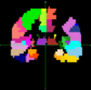 【FSL】Atlas(アトラス)を1枚1枚はがして別々にする方法