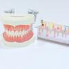 30代でインプラント!先天性乳歯欠如、第二小臼歯で子供の歯を使っている