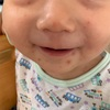 中耳炎の次は手足口病。断乳は断念。