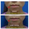 口角を上げるボトックス(切らない口角リフト) 緊急お知らせ ピコレーザーが進化しました