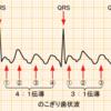 心房粗動と心房頻拍の違い