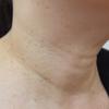 多発した首いぼの治療例です