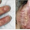 症例:Lancet 76歳女性 皮膚に多発する小丘疹