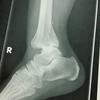 足首を骨折して、突然3週間の入院を言い渡された