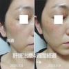 美容皮膚科で肝斑治療⑤ 途中経過 〜4週間