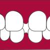 黒い歯茎を治す唯一の方法!ガムピーリングって知ってる?