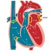 心房細動の原因の原因は