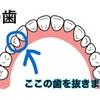 歯列矯正記録〜ついに装置装着❗️〜