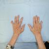 意外に見逃されやすい伸筋腱脱臼 放置すると筋腹のmyogenic contractionで元通りにならなくなる