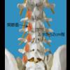 腰痛症 椎間関節性腰痛