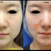 切らない鼻翼縮小術で小鼻を小さくしました。手術直後の写真です。