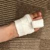 足指骨折からのQOL再考