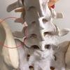 リチャード病による腰痛と足の痺れ