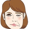 顔面神経麻痺のその後