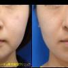 BNLS即効カクテルで小顔治療をしました。