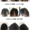 Capillus(カピラス)272の日本の回復例と継続使用での維持