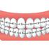 子供の歯の矯正について相談会に行ってきたので費用や期間などまとめてみた。
