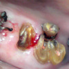 抜歯が必要な歯・抜かずにすむ歯と、歯肉に埋もれた残根の補綴症例