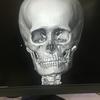 3Dスキャン画像①
