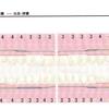 アラフォーの歯茎問題(2)7ヶ月ぶりの歯周ポケットチャート