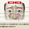 副鼻腔炎をいつ疑うか。感度と特異度