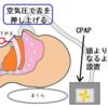 近況14.無呼吸症候群(SAS)とCPAP(シーパップ)