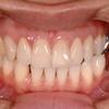 セラミック治療前にまずはご覧ください。 無料カウンセリングは、銀座しらゆり歯科