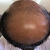 薄毛治療の開始から415日後の画像です