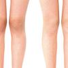 「下肢のゆがみ」 XO脚、OX脚 とは?
