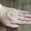 「老け」が進行していた手の甲の現在
