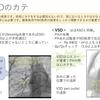 小児の心臓カテーテル検査について:造影と圧を疾患と絡めて その1 ~基本23~