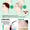 円形脱毛症、症状は様々