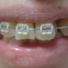 歯列矯正を開始してから156日目。