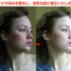 【美肌処理加工】ニキビや赤みを除去し、自然な肌に補正いたします